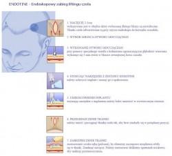 Endotine - endoskopowy zabieg liftingu czola