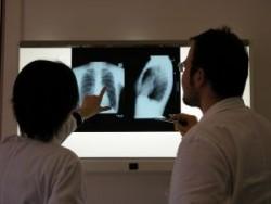 Podstawy walki z rakiem płuca - unikanie dymu tytoniowego i wczesna diagnostyka