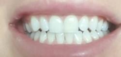 wybielanie zębów; wrażliwość; białe zęby; stomatologia; dentysta; zęby;