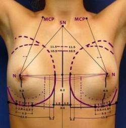 Jak prawidłowo dobrać implanty piersi?